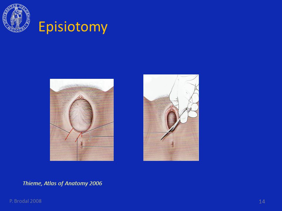 Pelvic Floor Episiotomy Thieme, Atlas of Anatomy 2006 P. Brodal 2008