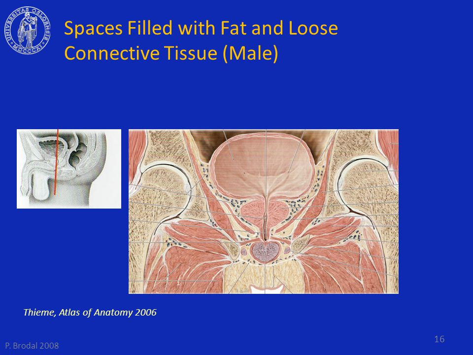 Spaces Filled with Fat and Loose Connective Tissue (Male)