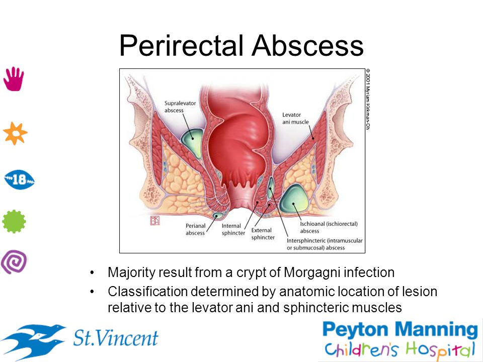 Perirectal Abscess Majority result from a crypt of Morgagni infection