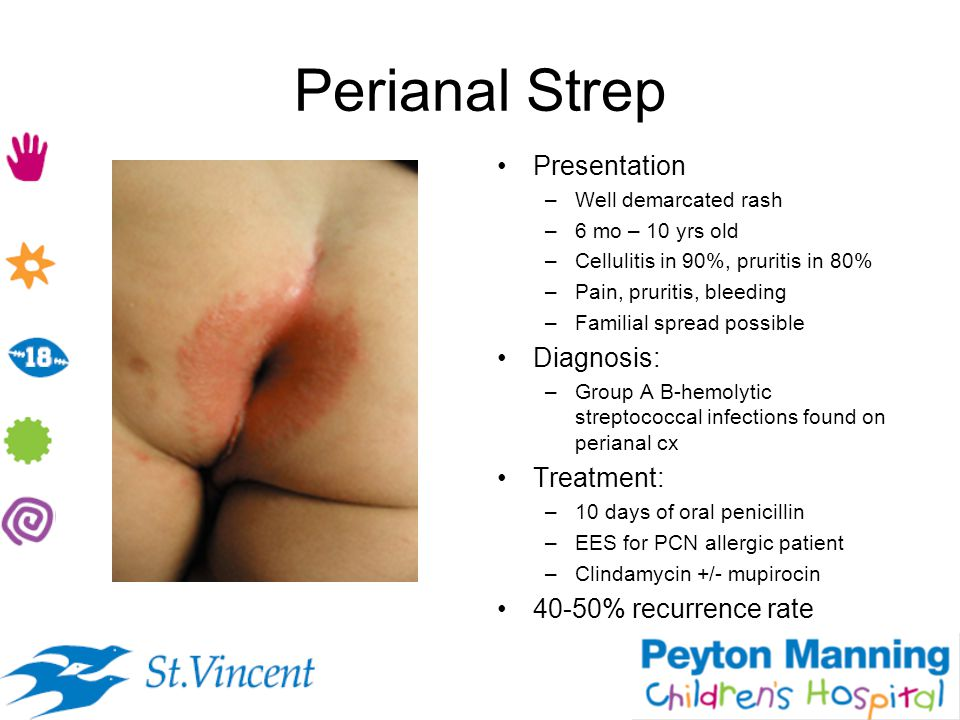 Perianal Strep Presentation Diagnosis: Treatment: