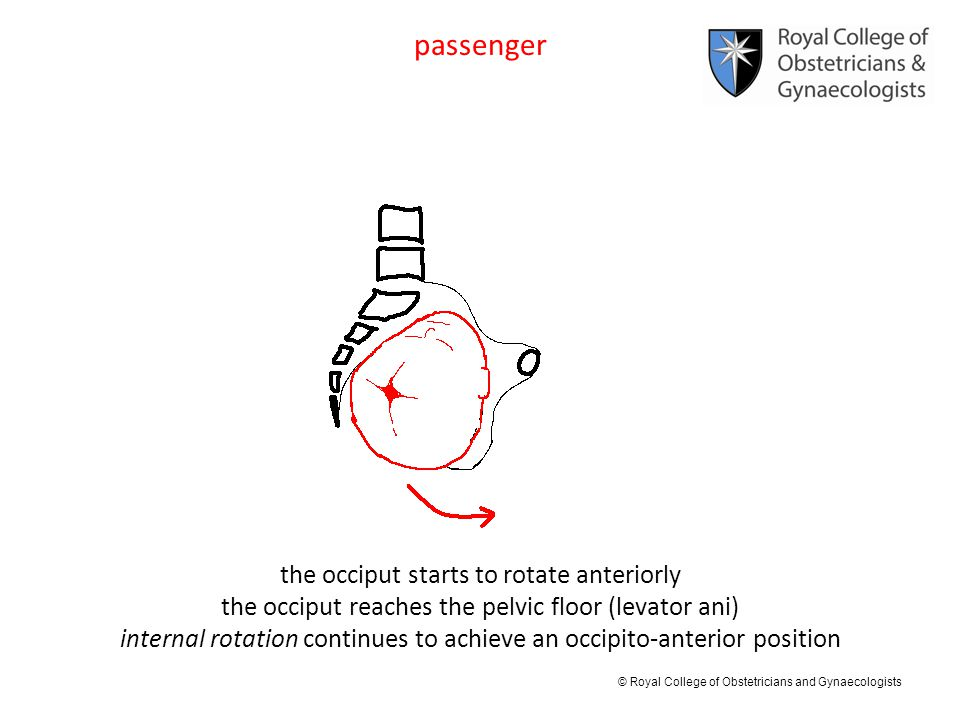passenger the occiput starts to rotate anteriorly