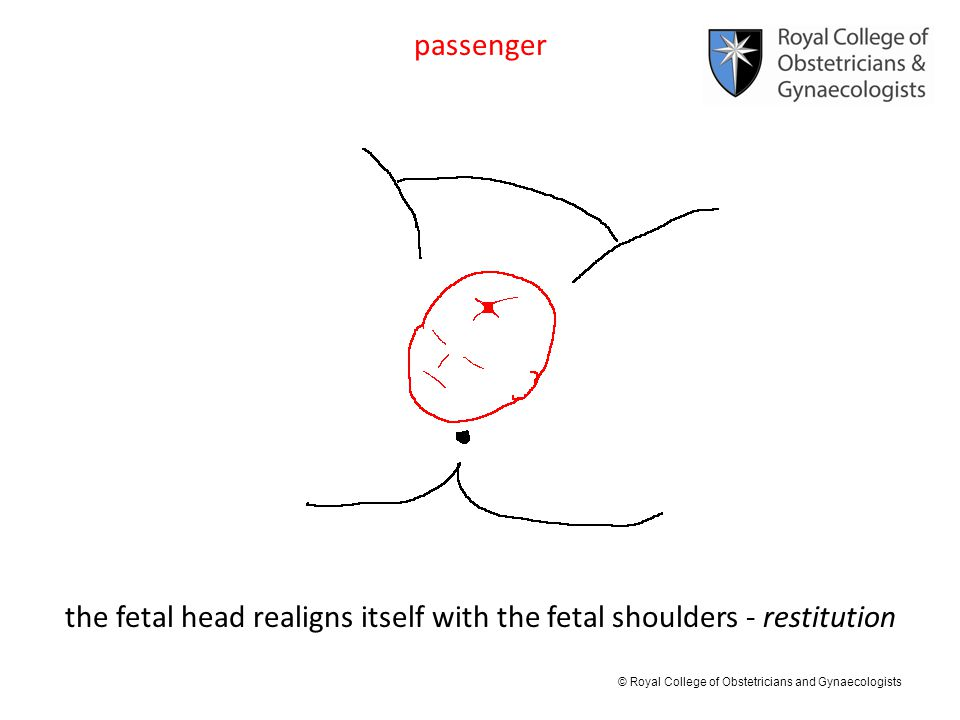 the fetal head realigns itself with the fetal shoulders - restitution