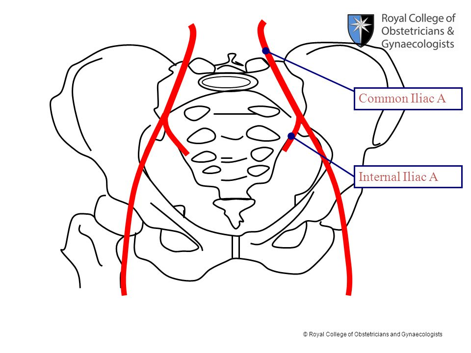 Common Iliac A Internal Iliac A