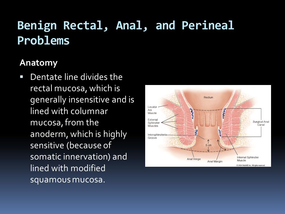 Benign Rectal, Anal, and Perineal Problems - ppt video online download