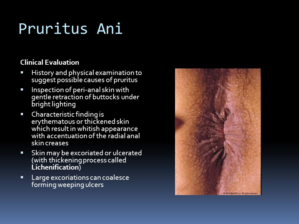 Pruritus Ani Clinical Evaluation