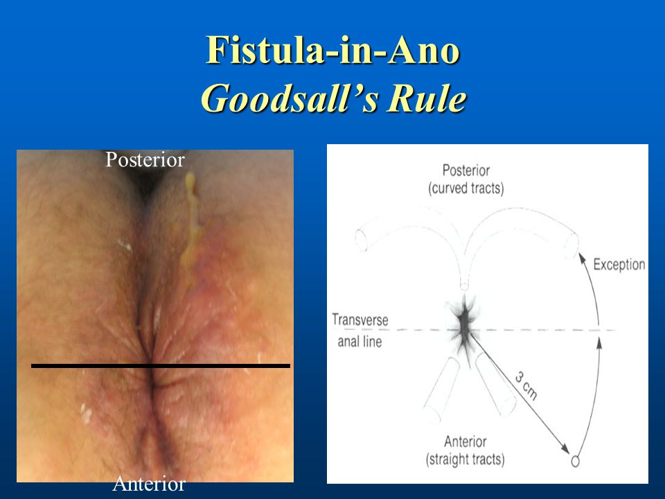 Fistula-in-Ano Goodsall's Rule