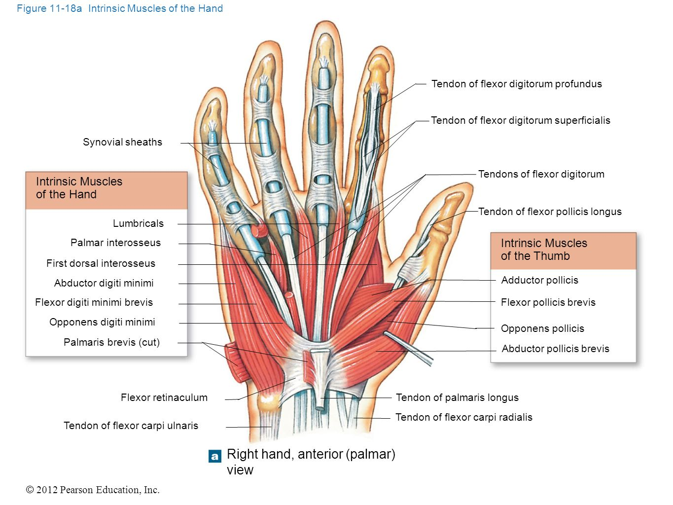 Figure 11-18a Intrinsic Muscles of the Hand