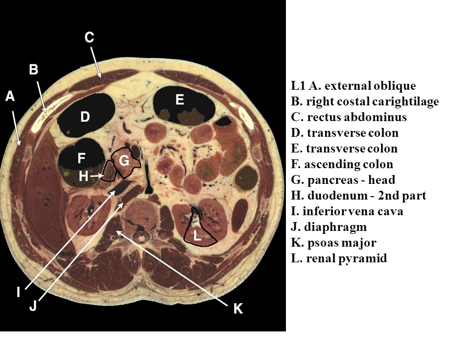 Cross Sectional Anatomy Abdomen Ppt Video Online Download