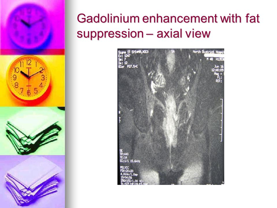 Gadolinium enhancement with fat suppression – axial view