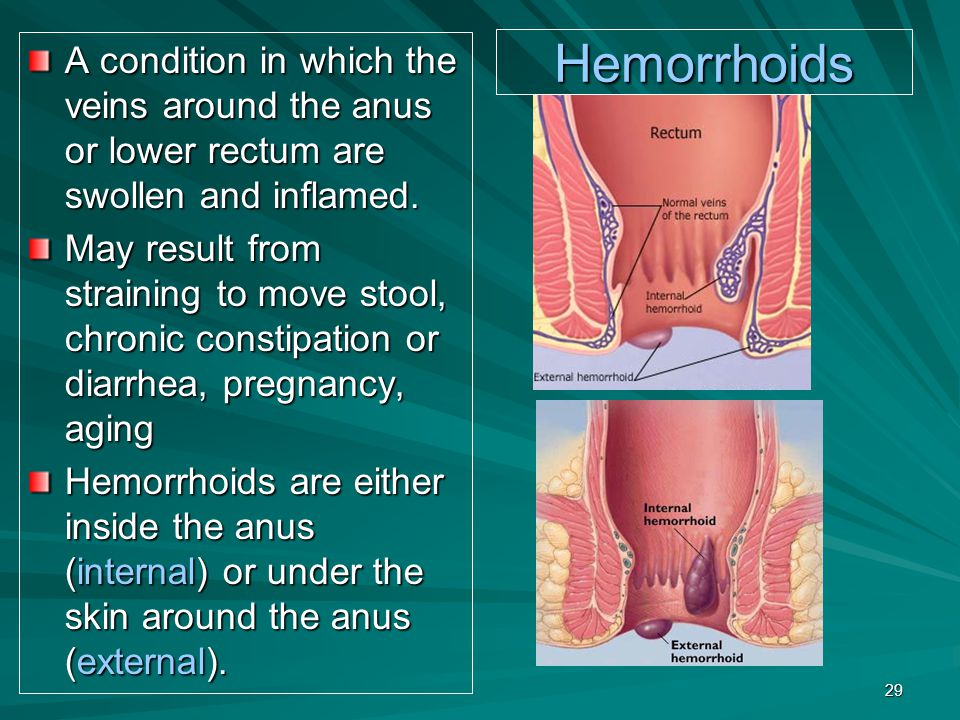 A condition in which the veins around the anus or lower rectum are swollen and inflamed.