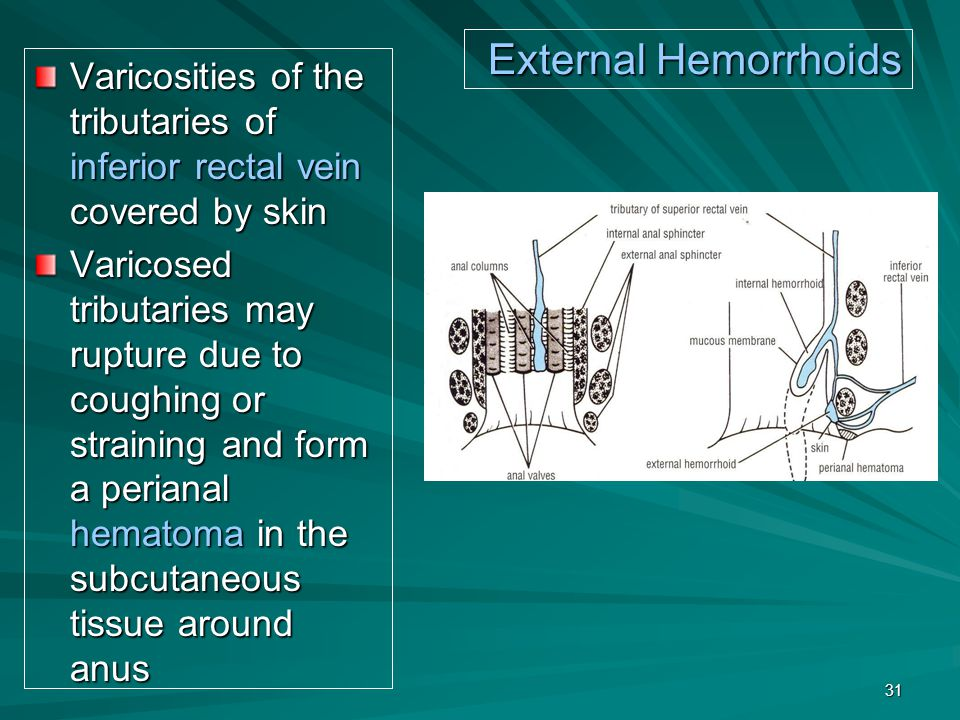 External Hemorrhoids Varicosities of the tributaries of inferior rectal vein covered by skin.