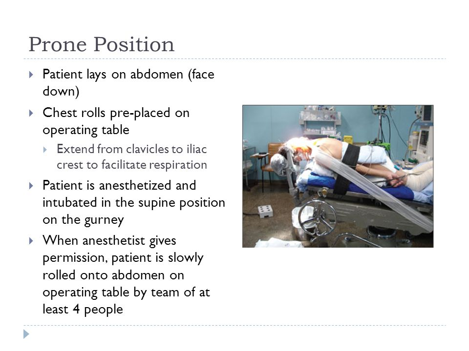 Prone Position Patient lays on abdomen (face down)