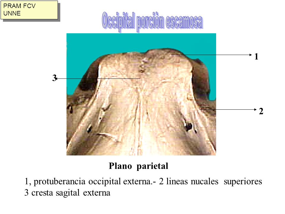 Occipital porciòn escamosa