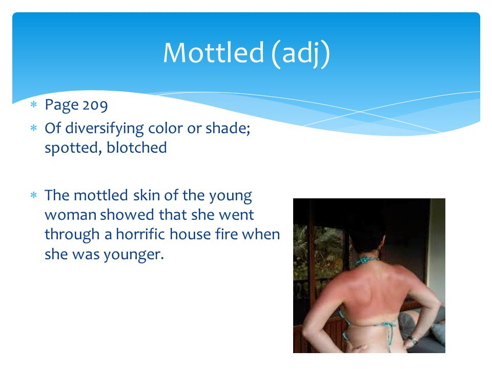 Mottled (adj) Page 209. Of diversifying color or shade; spotted, blotched.