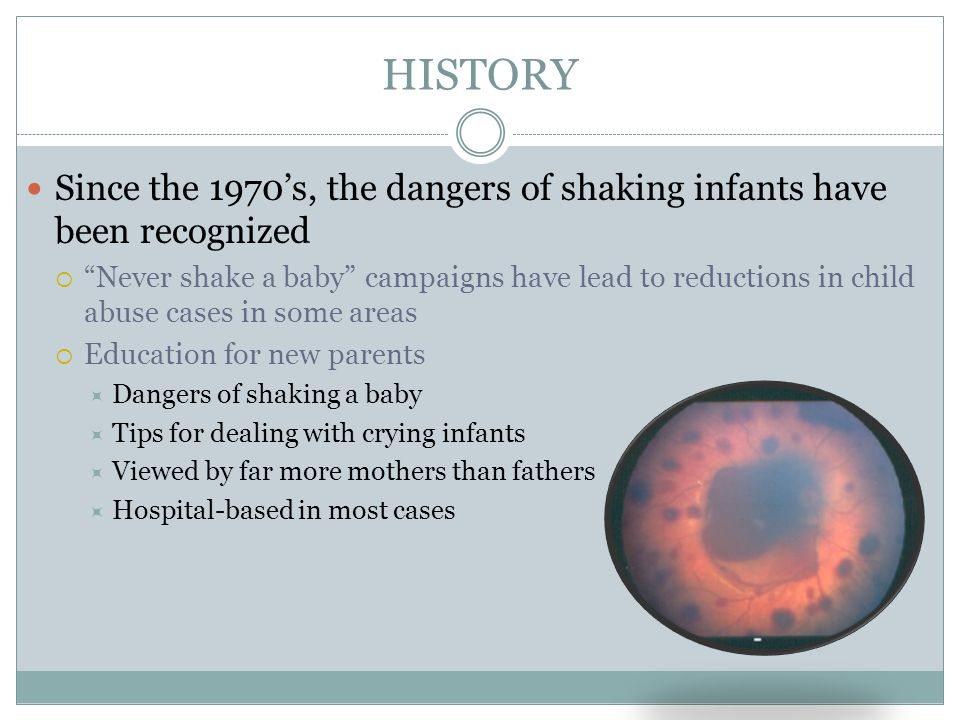 HISTORY Since the 1970's, the dangers of shaking infants have been recognized.
