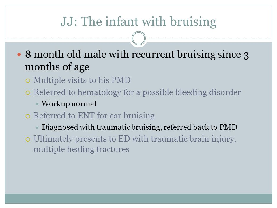 JJ: The infant with bruising