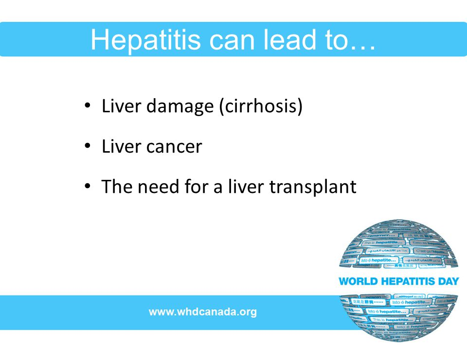 Hepatitis can lead to… Liver damage (cirrhosis) Liver cancer