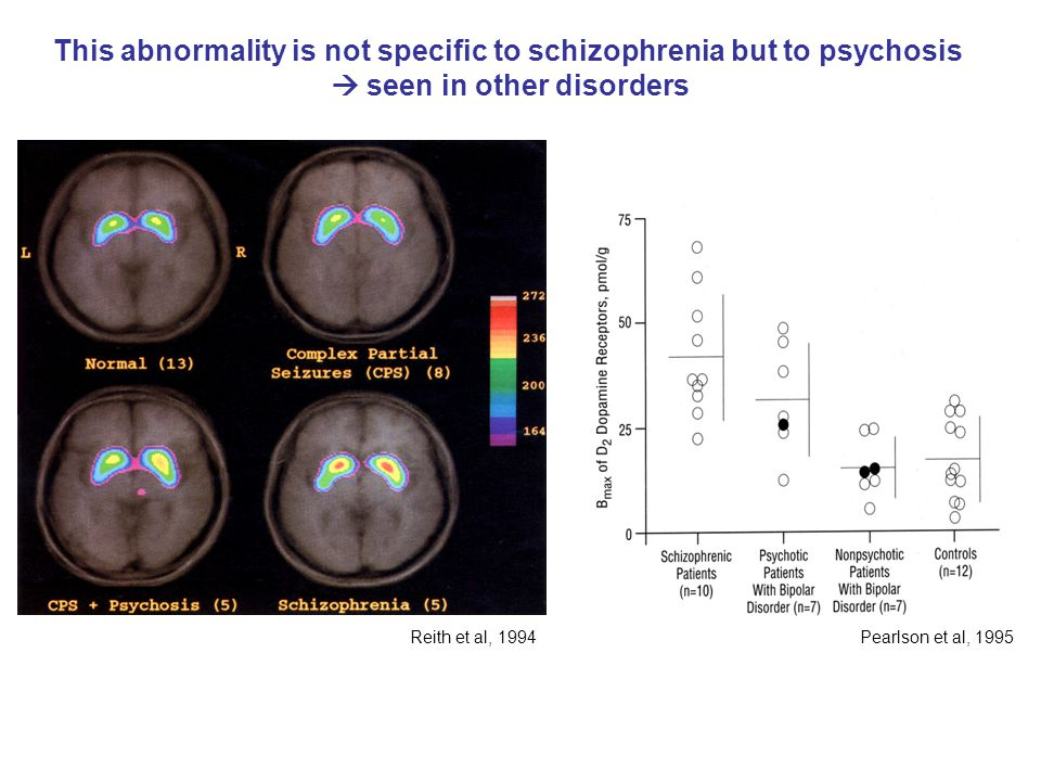 This abnormality is not specific to schizophrenia but to psychosis