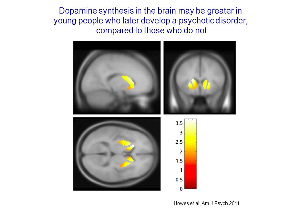 Dopamine synthesis in the brain may be greater in