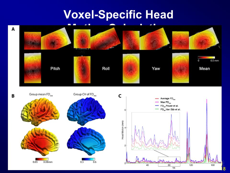 Voxel-Specific Head Motion Calculation