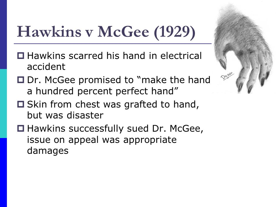 Hawkins v McGee (1929) Hawkins scarred his hand in electrical accident