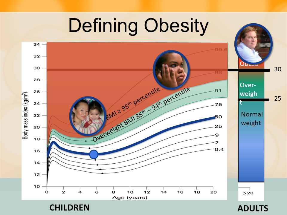 Defining Obesity CHILDREN ADULTS Obese 30 Over- weight