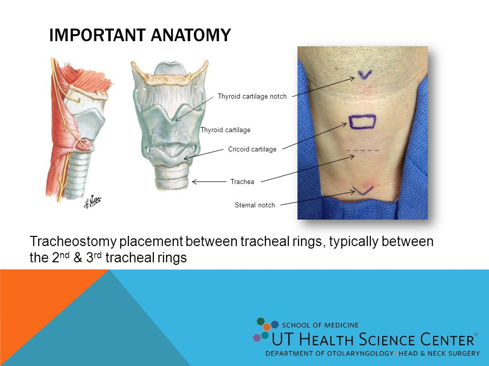 Tracheostomy The Surgical Airway Ppt Download