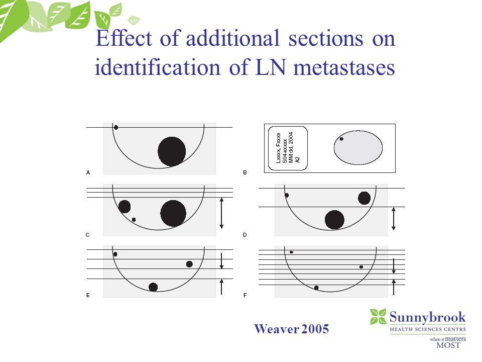 Effect of additional sections on identification of LN metastases