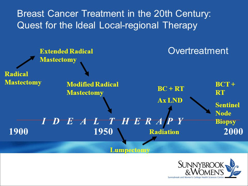 Breast Cancer Treatment in the 20th Century: Quest for the Ideal Local-regional Therapy