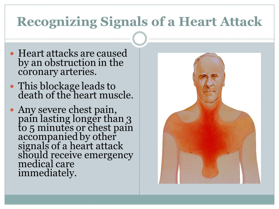 Recognizing Signals of a Heart Attack