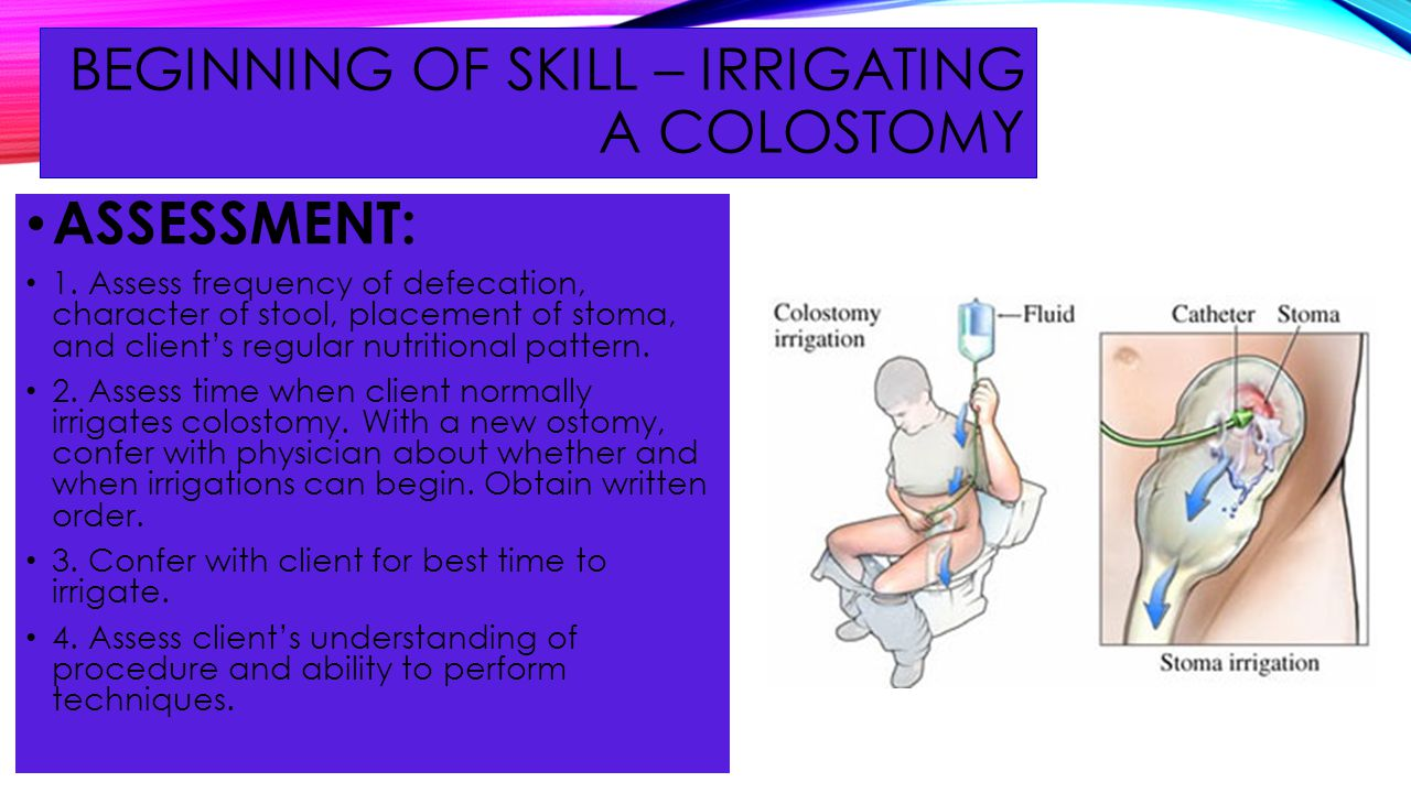 BEGINNING OF SKILL – Irrigating a colostomy