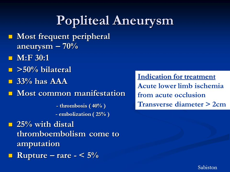 Popliteal Aneurysm Most frequent peripheral aneurysm – 70% M:F 30:1