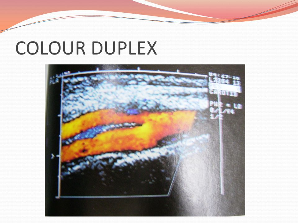 COLOUR DUPLEX