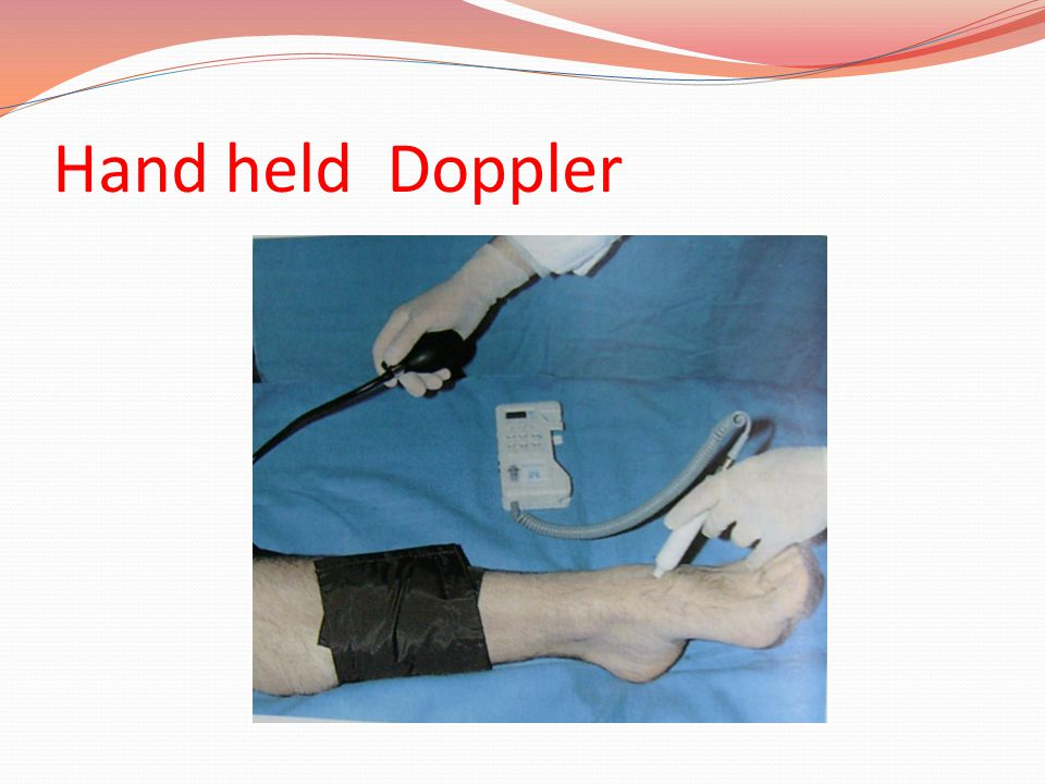 Hand held Doppler