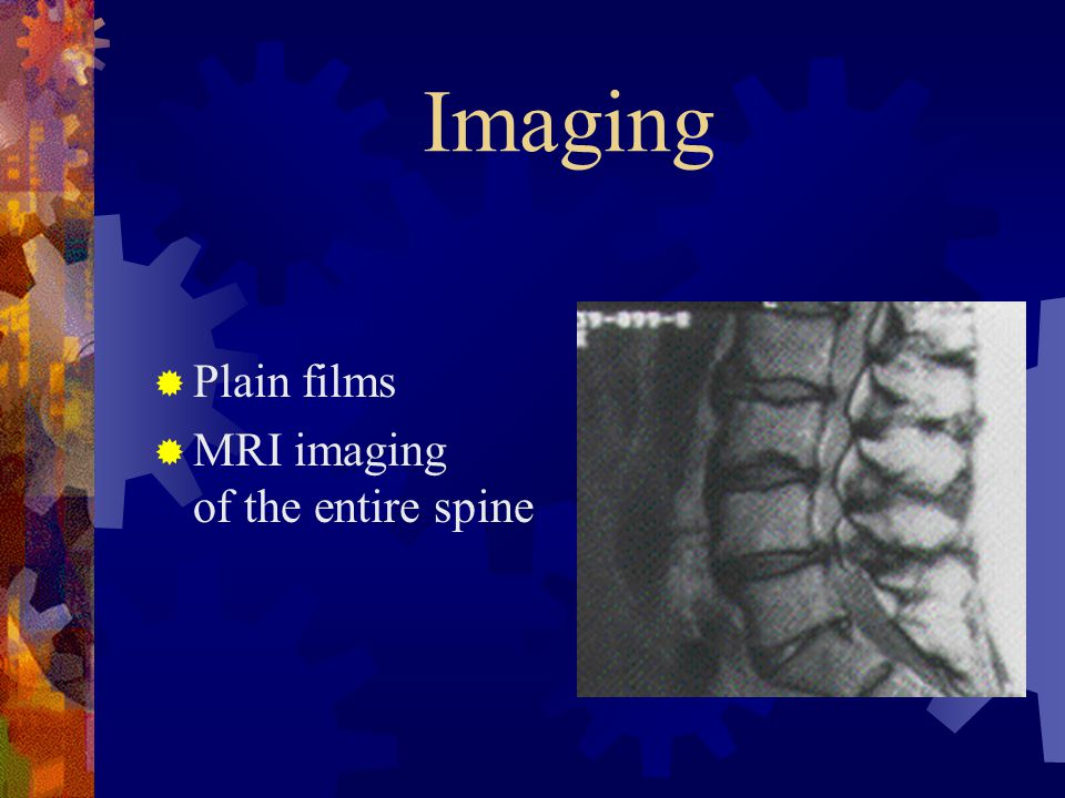 Imaging Plain films.