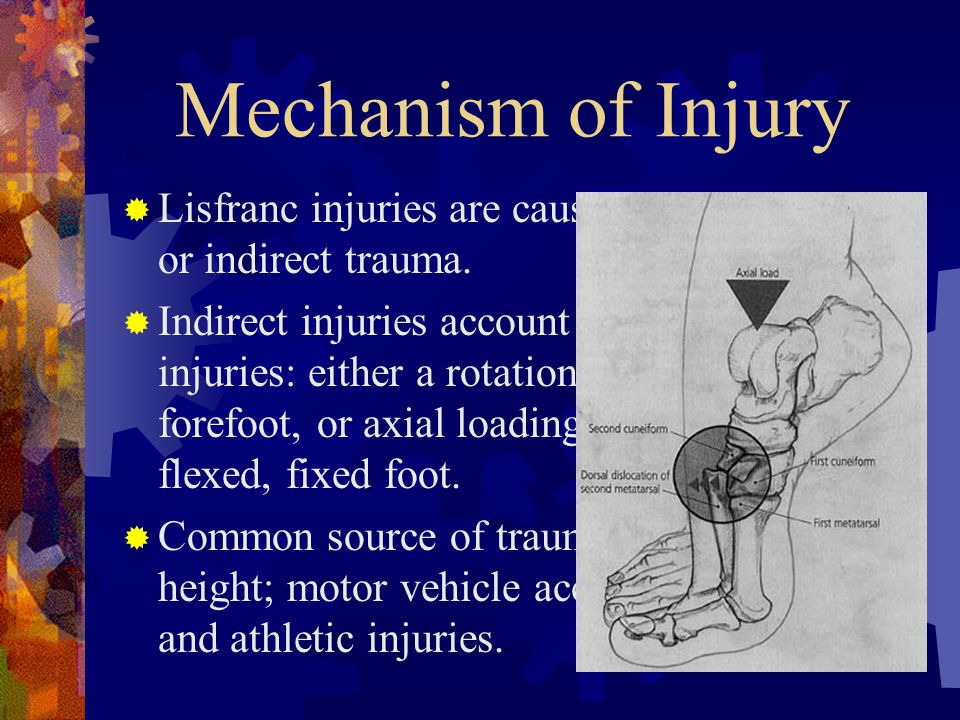Mechanism of Injury Lisfranc injuries are caused by either direct or indirect trauma.