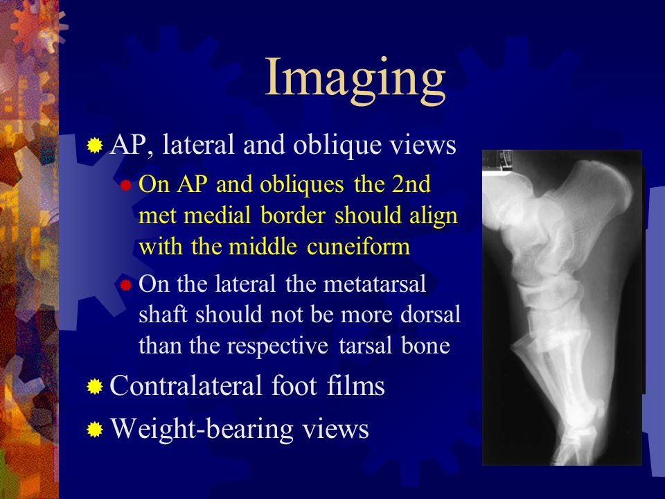Imaging AP, lateral and oblique views Contralateral foot films