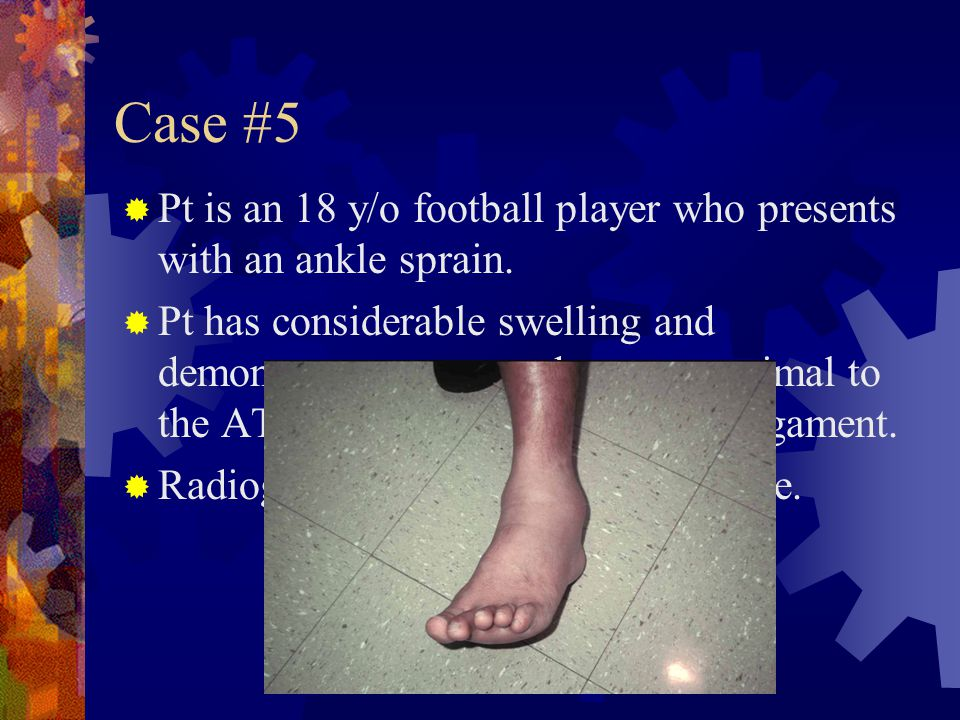 Case #5 Pt is an 18 y/o football player who presents with an ankle sprain.