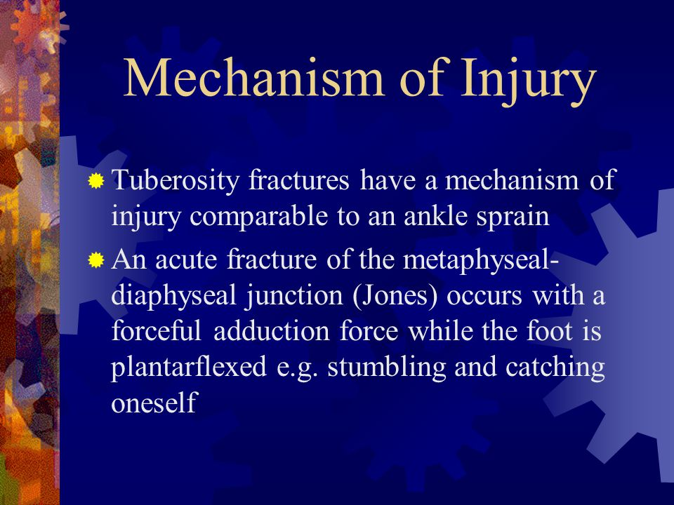 Mechanism of Injury Tuberosity fractures have a mechanism of injury comparable to an ankle sprain.