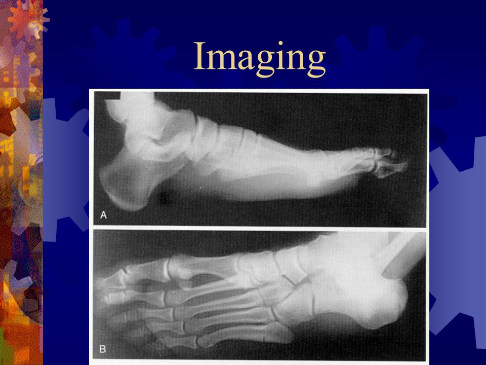Imaging AP, lateral and oblique radiographs