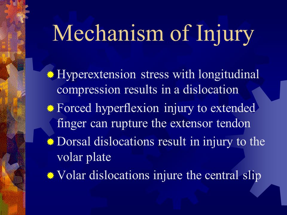 Mechanism of Injury Hyperextension stress with longitudinal compression results in a dislocation.