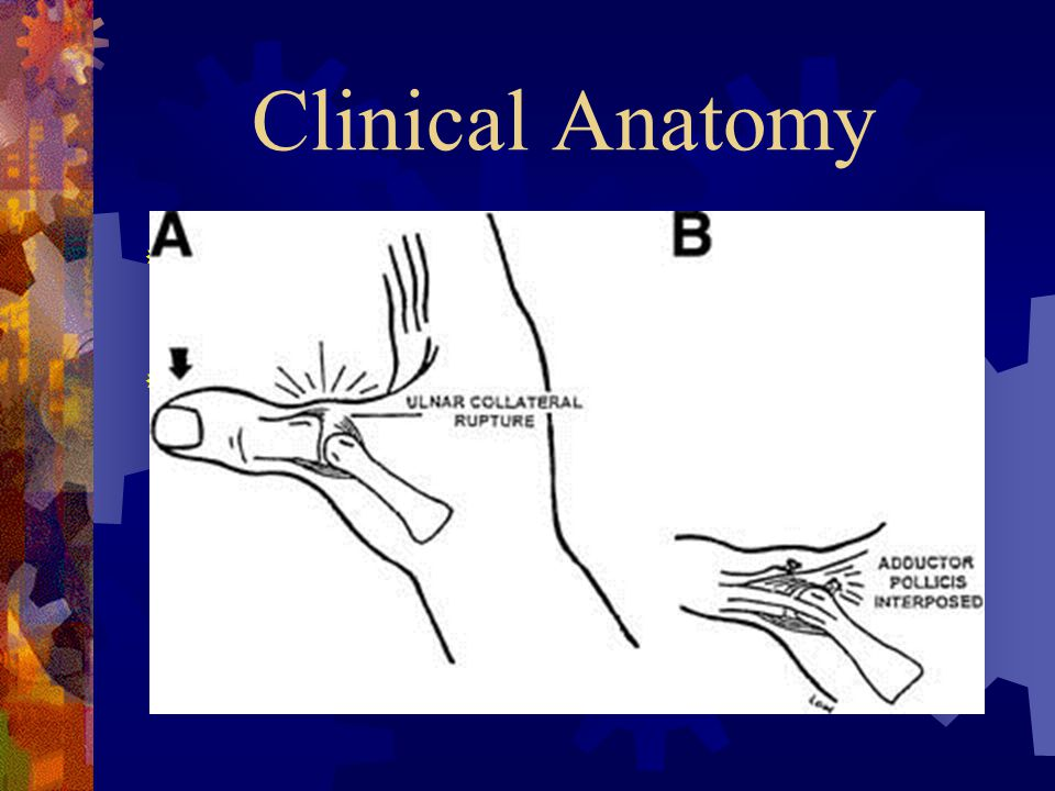 Clinical Anatomy The thumb has a volar plate and well defined collateral ligaments.