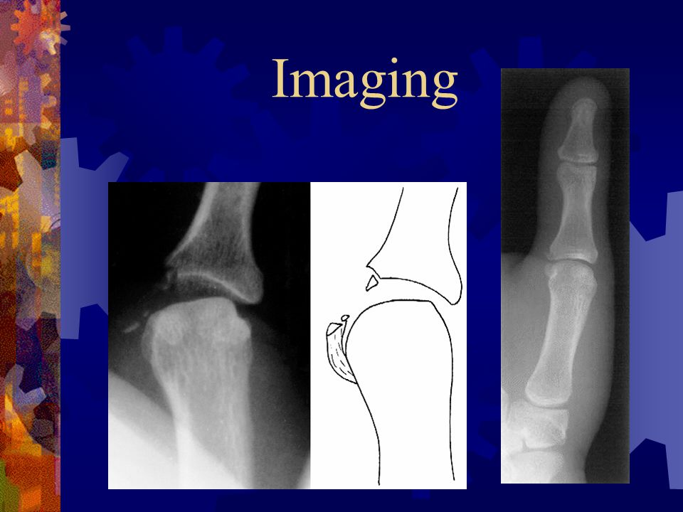 Imaging Thumb PA, lateral and oblique radiographs