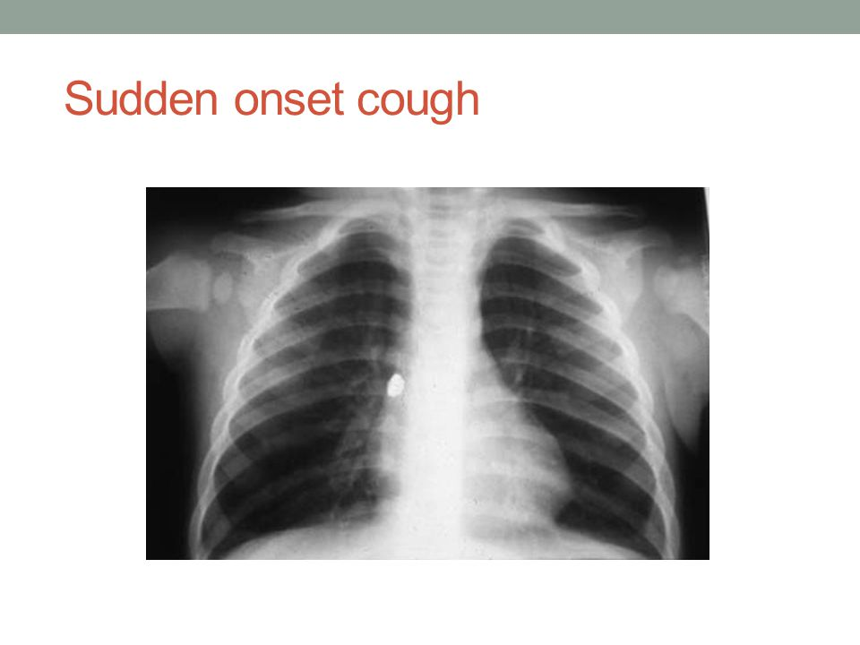 Sudden onset cough