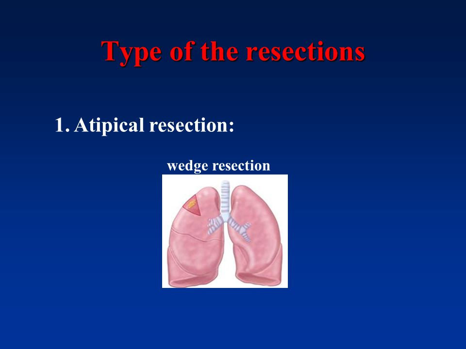Type of the resections 1. Atipical resection: wedge resection