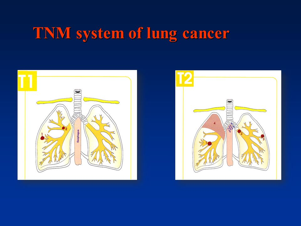 TNM system of lung cancer