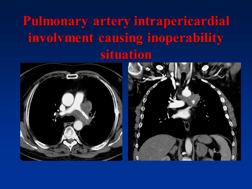 Pulmonary artery intrapericardial involvment causing inoperability situation
