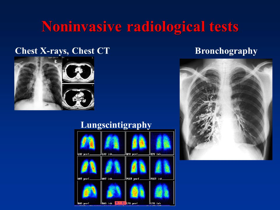 Noninvasive radiological tests