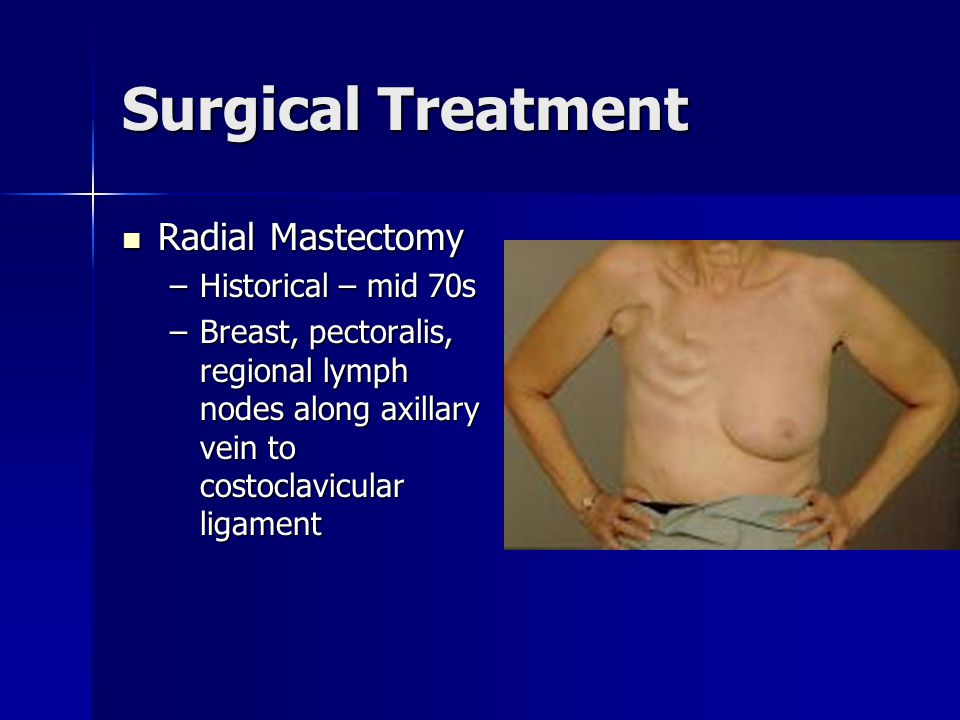 Surgical Treatment Radial Mastectomy Historical – mid 70s