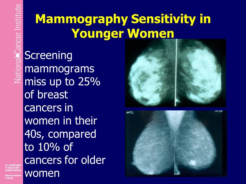 Mammography Sensitivity in Younger Women